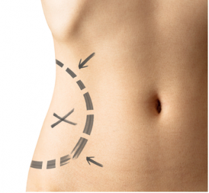 liposuction of the hips