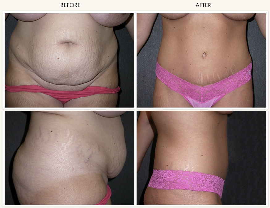 How To Get Rid Of Tummy Fat Naturally