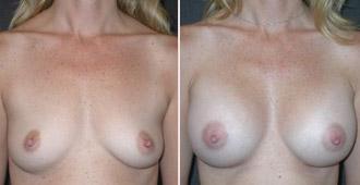 Orange County Mommy makeover surgeon
