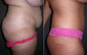 Orange County Tummy Tuck Surgery