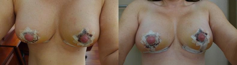 Breast Lift Post-Op Photos