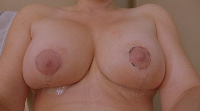 breast lift after major weight loss