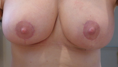 Breast Lift after significant weight loss