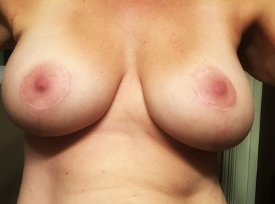 Breast Lift Surgery after major weight loss