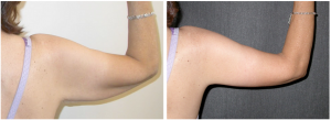 Arm Lift Surgery Before and After Photos