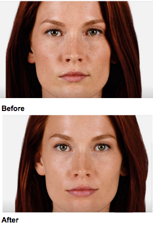 Before and After JUVEDERM Lip Augmentation