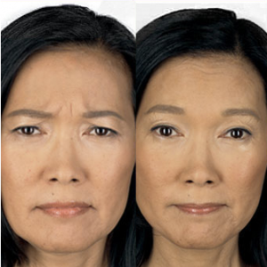 BOTOX® Cosmetic Before and After Photos