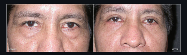 before-and-after-eyelid-surgery