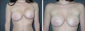 Before and After Breast Asymmetry Correction
