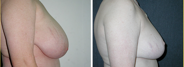 What Makes Breast Reduction Medically Necessary Andres Taleisnik Md