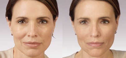 JUVÉDERM® Before and After Photos