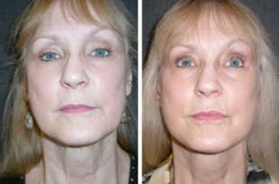 Before and After Facelift and Neck Lift