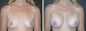 breast augmentation orange county photo