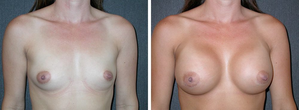 breast augmentation in orange county