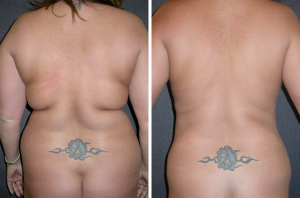 Back liposuction for summer