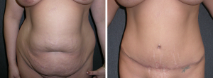 summer tummy tuck in orange county